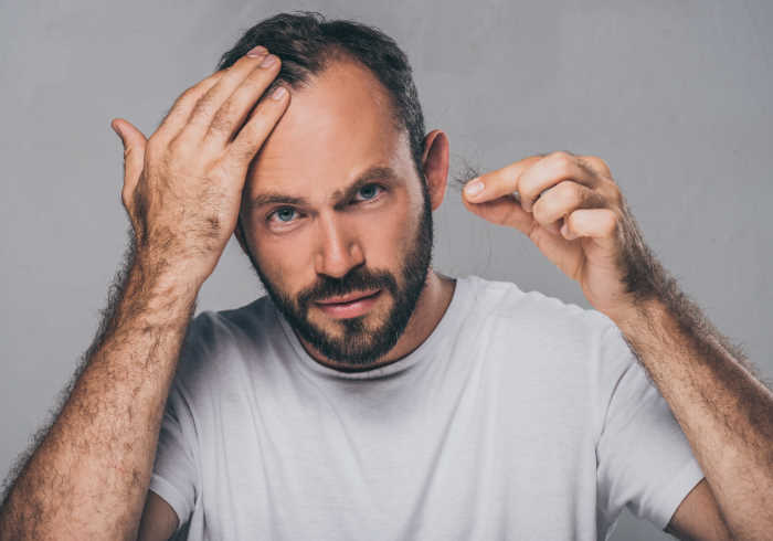Bearded middle aged man holding fallen hair   does MK-677 Cause Hair Loss