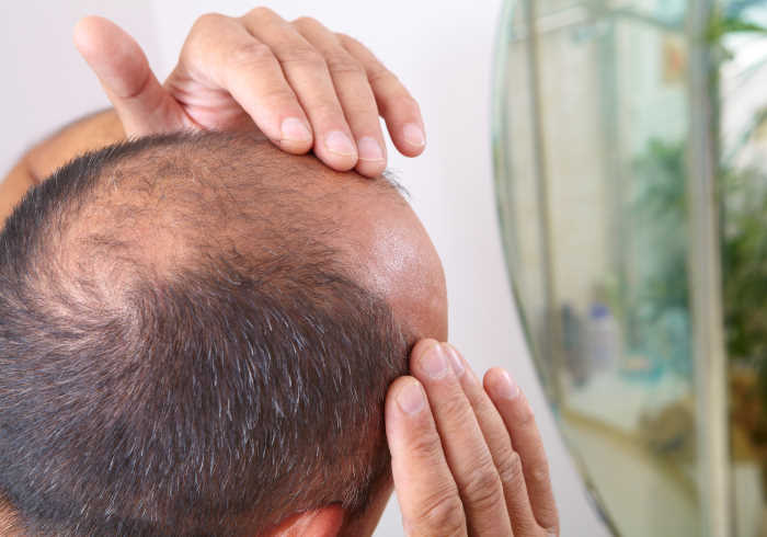 Middle-aged man concerned with hair loss baldness   Does MK-677 Cause Hair Loss?