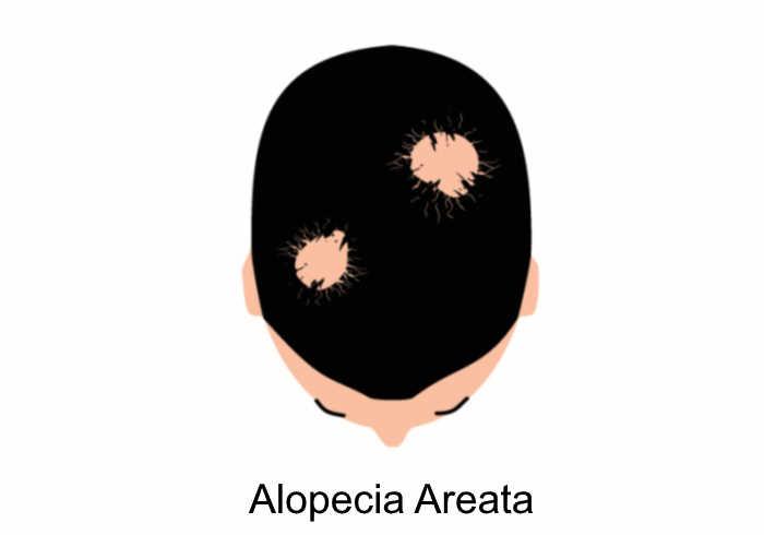 alopecia areata   Does MK-677 Cause Hair Loss