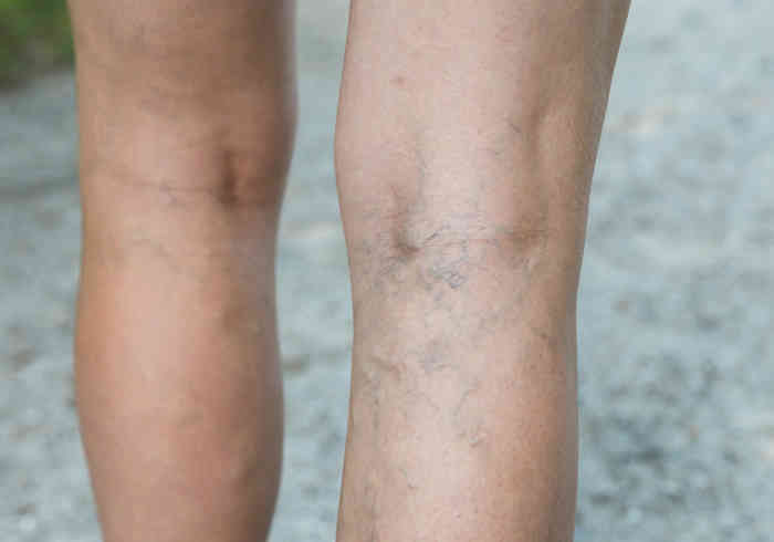deep veins thrombosis   Does MK-677 Cause Water Retention