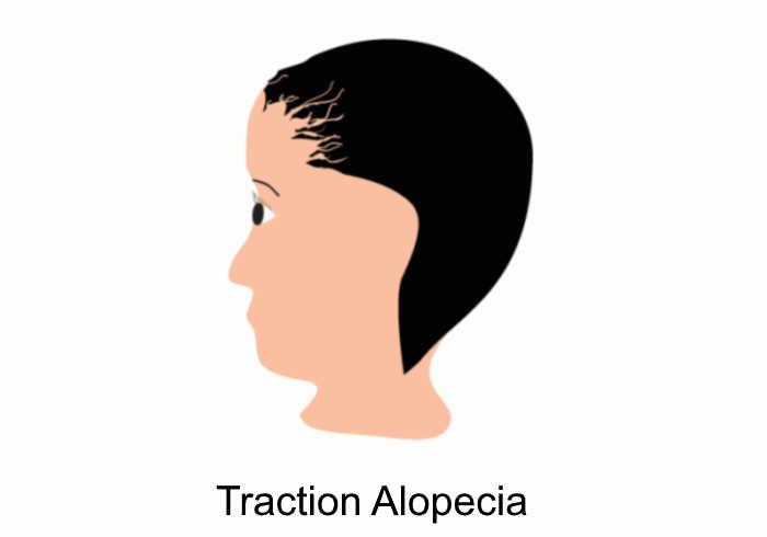 traction alopecia   Does MK-677 Cause Hair Loss
