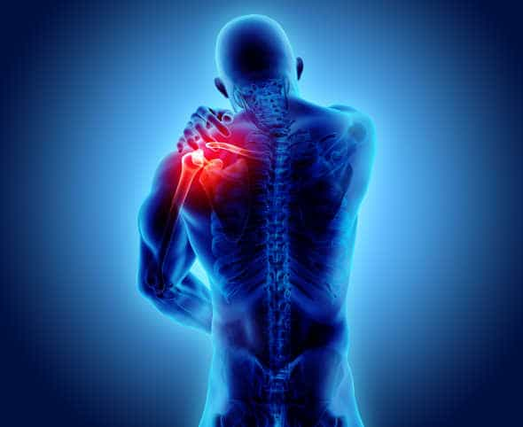 body builder with shoulder joint pain