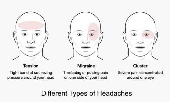 3 different kind of headaches : does MK-0677 cause headaches